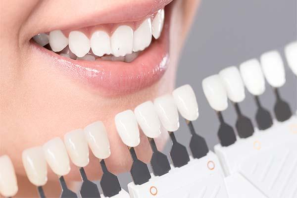 facette dentaire Cergy
